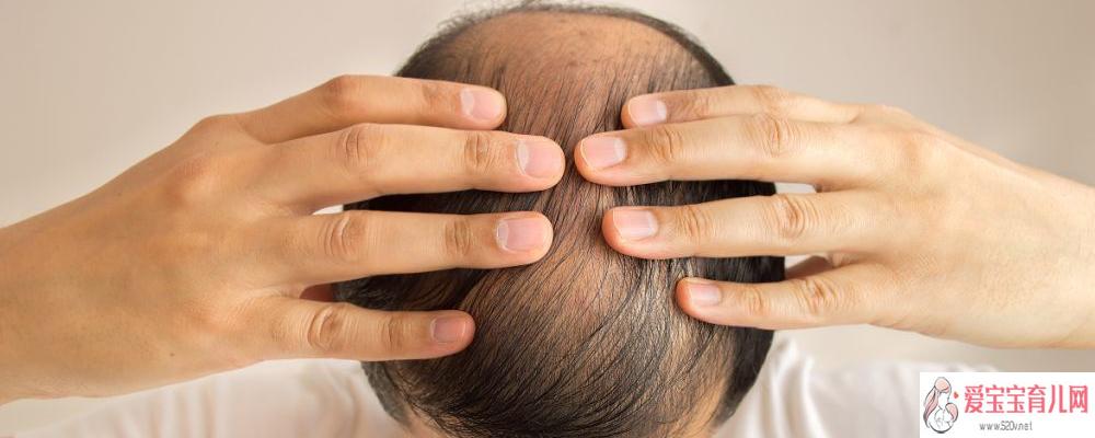 洗热水会导致脱发吗 如何防止脱发
